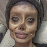 Woman Has 50 Operations to 'Look Just Like Angelina Jolie & Join the Illuminati'