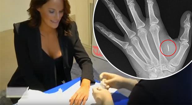 Švédsko zahajuje implantaci mikročipů pod kůži zaměstnanců. Lidé jsou nadšení